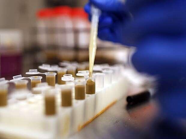 Testes indicam que cheirar fezes é mais eficiente que tomar antibiótico