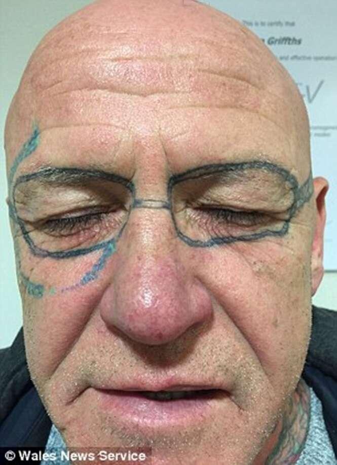 Homem vai para despedida de solteiro, fica bêbado e acorda com tatuagem de óculos em seu rosto