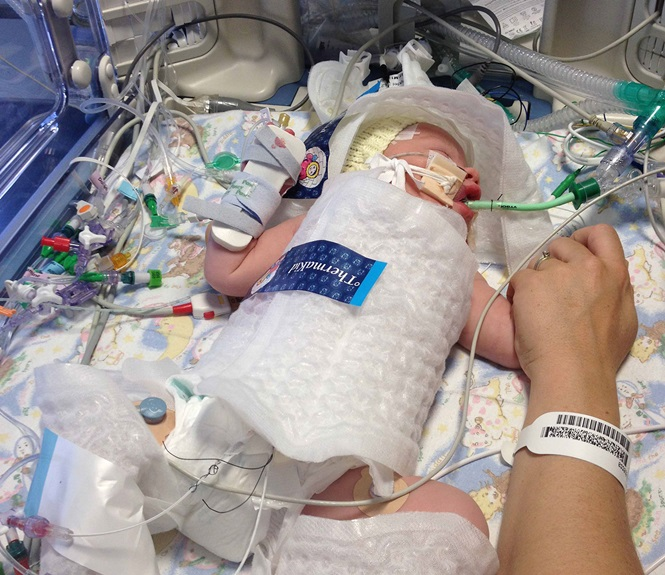 Bebê nasce sem respirar e médicos salvam sua vida lhe congelando embrulhando em plástico-bolha