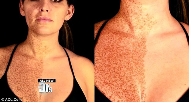 Mulher com sardas em apenas metade do corpo intriga especialistas