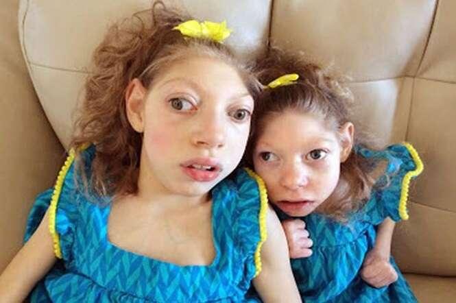Irmãs de 9 e 14 anos vivem em corpos de bebês devido a condição rara
