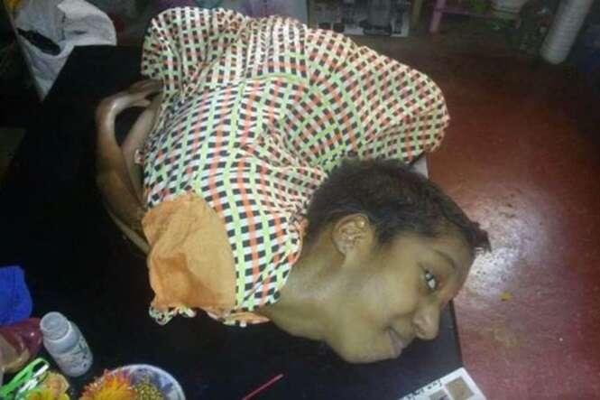 Jovem de 20 anos que possui cabeça inclinada em 180º devido à condição rara sonha em ser pintora
