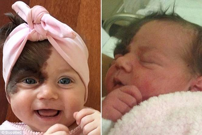 Bebê com marca de nascença
