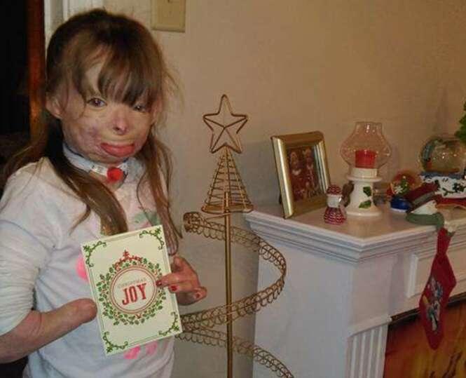 Única sobrevivente de incêndio criminoso em casa começa receber cartões de Natal do mundo inteiro