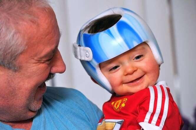 Bebê tem que usar capacete 23 horas por dia após nascer com condição incurável
