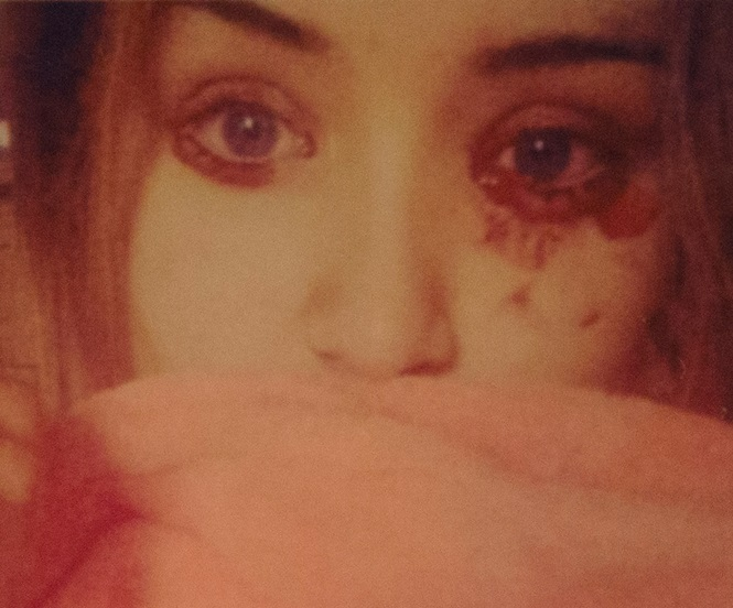 Menina sofre com condição misteriosa que a faz chorar sangue