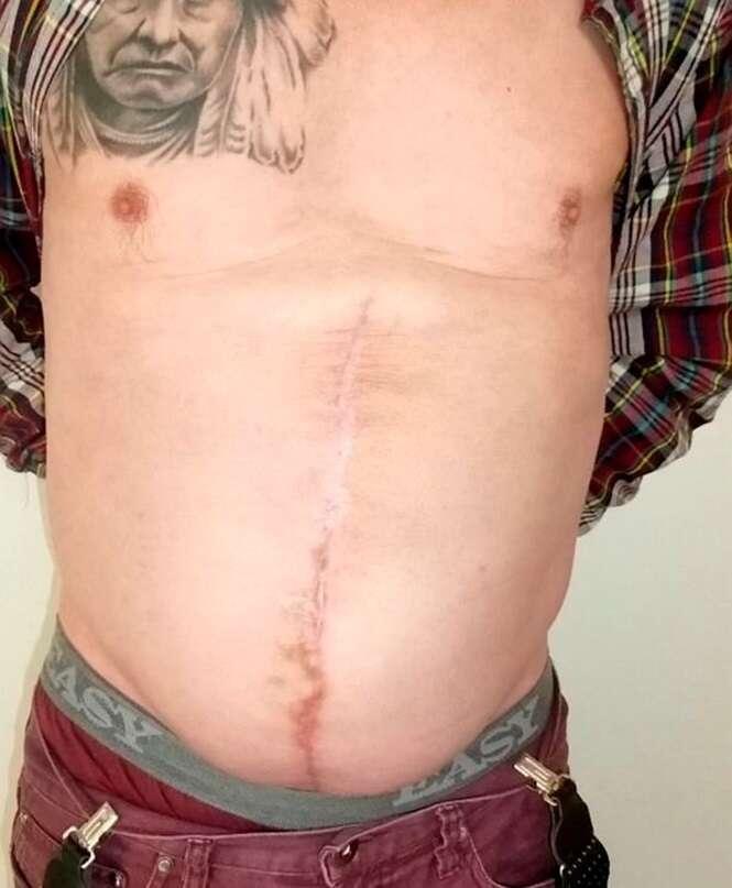 Homem que tinha hérnia do tamanho de uma bola de futebol no abdômen é acusado de roubo pela saliência da barriga