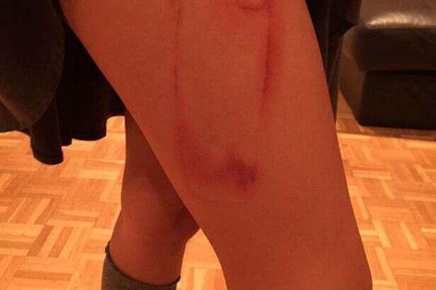 Menina fica com marca de iPhone na coxa depois de ácido tóxico vazar de case e queimar sua pele