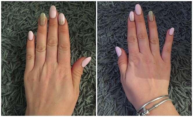 Internautas postam fotos de seus dedos mindinhos tortos por suposto uso excessivo de smartphone