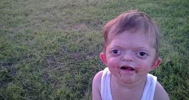 Mãe fica devastada ao postar foto de filho deficiente e imagem se tornar meme cruel