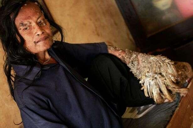 Homem com condição incurável que fazia crescer raízes de árvore em seu corpo morre