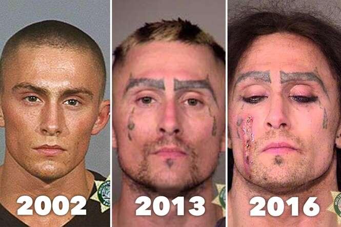 Série de imagens mostra transição de belo jovem ao se tornar viciado em drogas