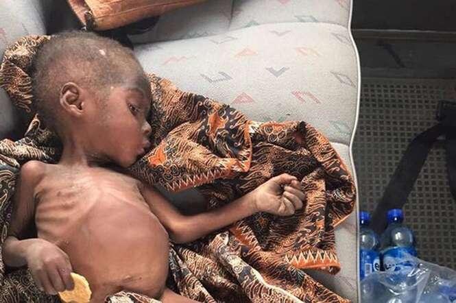 Menino de 2 anos passa 8 meses vagando pelas ruas à procura de comida após ser abandonado por pais