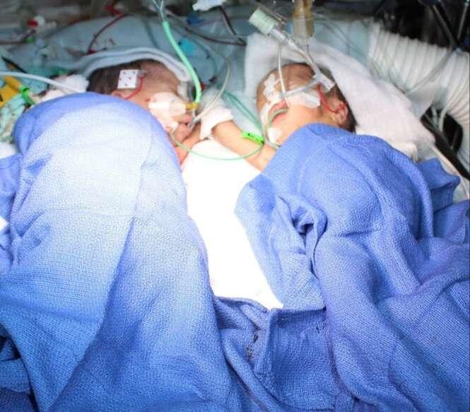 Gêmeas siamesas nascem em parto de trigêmeas e são separadas com apenas 8 dias de vida