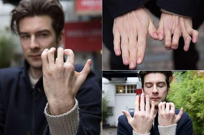 Homem tem dedos dos pés colocados nas mãos
