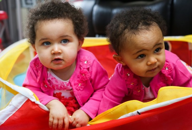 Gêmeas univitelinas nascem com cor de pele diferente