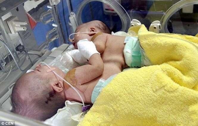 Adolescente de 18 anos dá à luz gêmeos siameses e crianças passam por cirurgia de separação