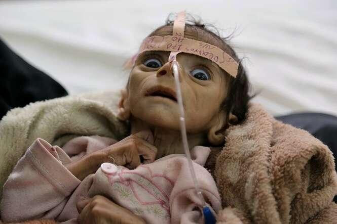 Imagem comovente mostra bebê lutando para viver apenas dois dias antes de morrer de fome no Iêmen