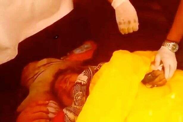 Mulher com obesidade mórbida é levada a hospital na traseira de caminhão