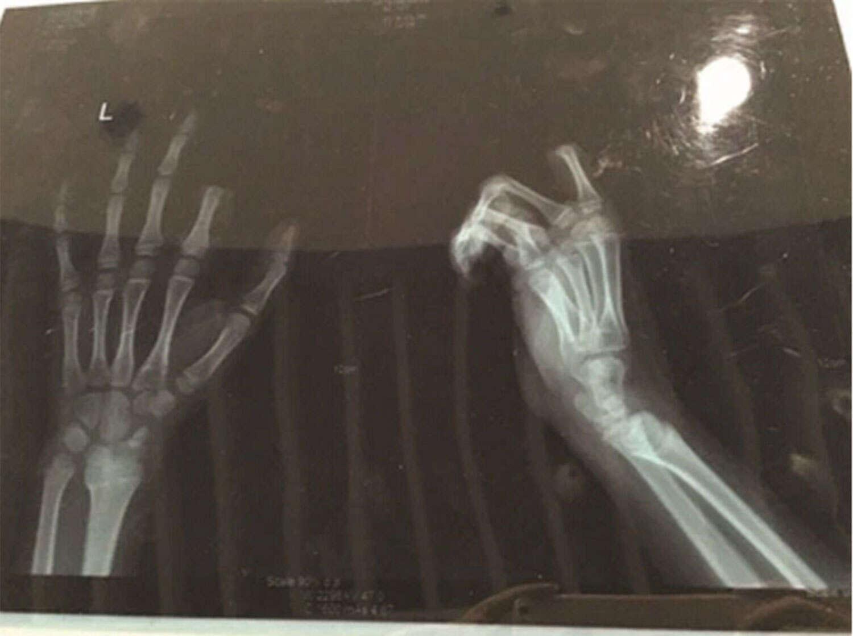 Menino corta o dedo após ser repreendido pelos pais por causa de seu vício em games de celular
