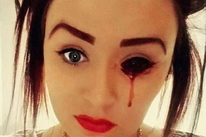 Adolescente sofre com condição misteriosa que faz sangrar seus olhos, ouvidos, cabeça e boca