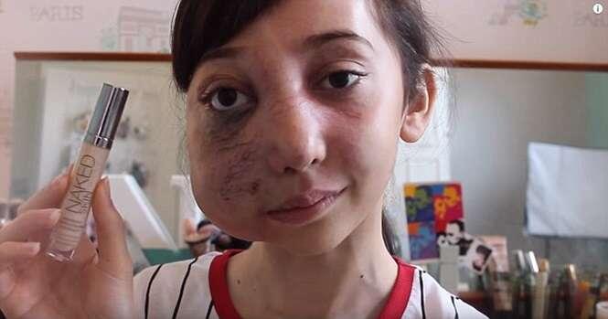 Internauta que nasceu com rosto desfigurado faz sucesso com dicas de beleza na web