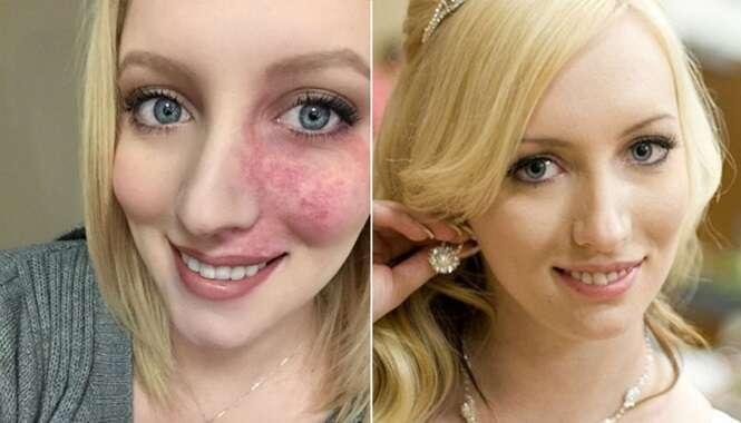 Mulher que passou a vida escondendo marca de nascença com maquiagem vence o medo