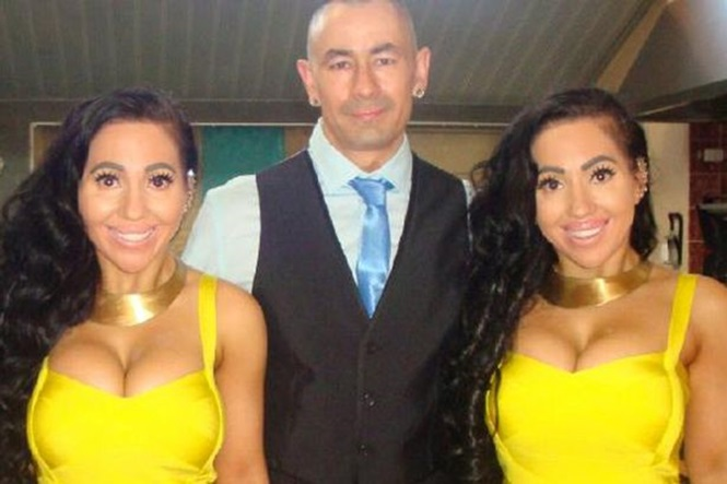 Gêmeas idênticas que compartilham tudo pretendem engravidar juntas do amado