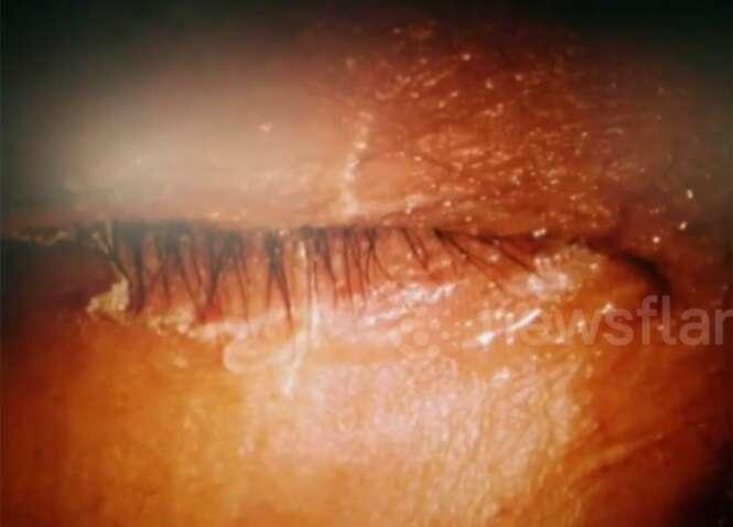 Mulher confunde supercola com colírio e gruda olho