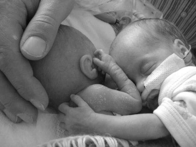 Recém-nascida prematura sobrevive milagrosamente após ser colocada ao lado de sua irmã gêmea