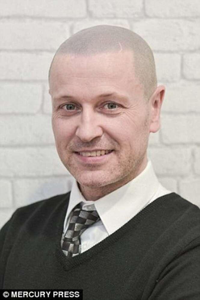 Homem que ficou careca após acidente na infância tem couro cabeludo tatuado