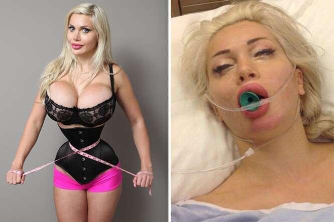 Modelo gasta mais de R$ 400 mil em cirurgias para ficar parecida com personagem de desenho animado
