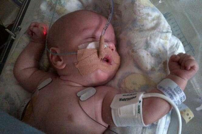 Bebê nasce com os intestinos fora do corpo e quase morreu