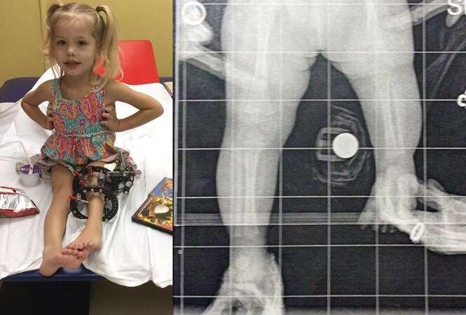 Pais escolhem quebrar a perna da filha 3 vezes ao dia durante 4 meses