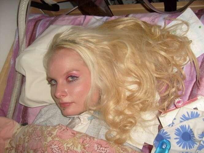 Primeira Barbie humana tetraplégica do mundo afirma que se parecer com a boneca lhe ajuda a lidar com a paralisia