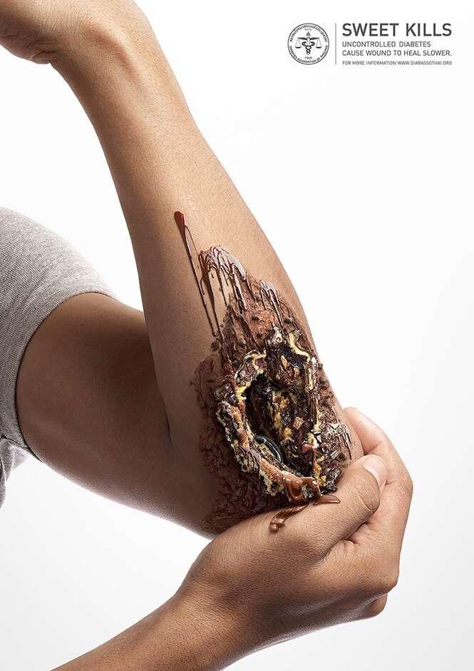 Imagens chocantes mostram o lado perigoso do açúcar