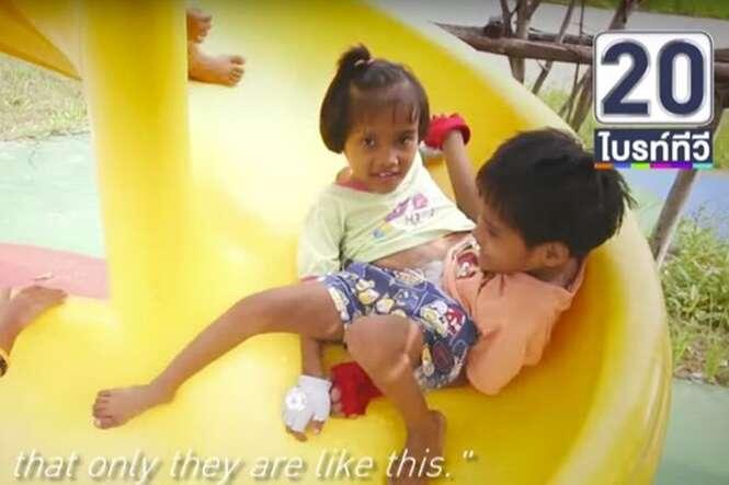 Gêmeas siamesas se tornam inspiração ao superarem dificuldades para ir juntas à escola