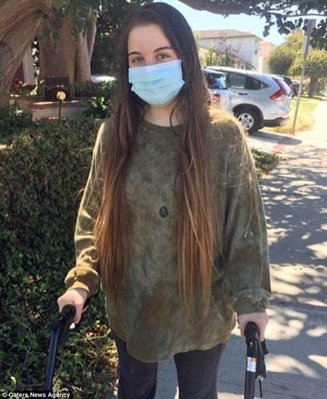 Mulher alérgica à vida tem que viver trancada para não morrer