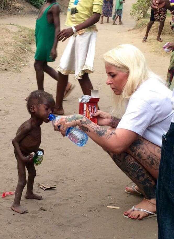 Menino nigeriano de 2 anos tem recuperação surpreendente após ser abandonado pelos pais