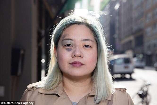 Mulher com marca de nascença semelhante a hematoma confunde pessoas nas ruas
