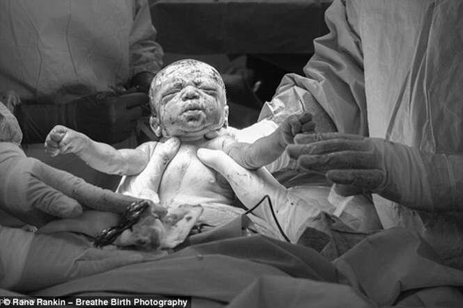 Imagens impressionantes mostram mãe dando à luz seu próprio bebê por cesariana