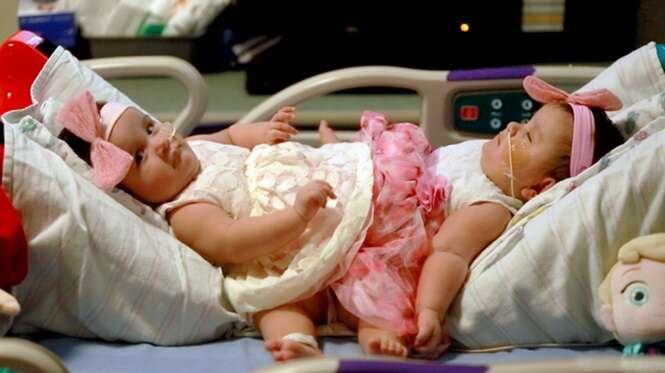 Gêmeas siamesas nascidas em gestação de trigêmeas são separadas