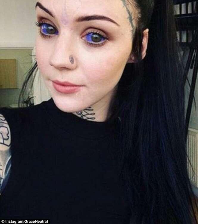 Jovem tem umbigo removido, globos oculares tatuados e língua bifurcada