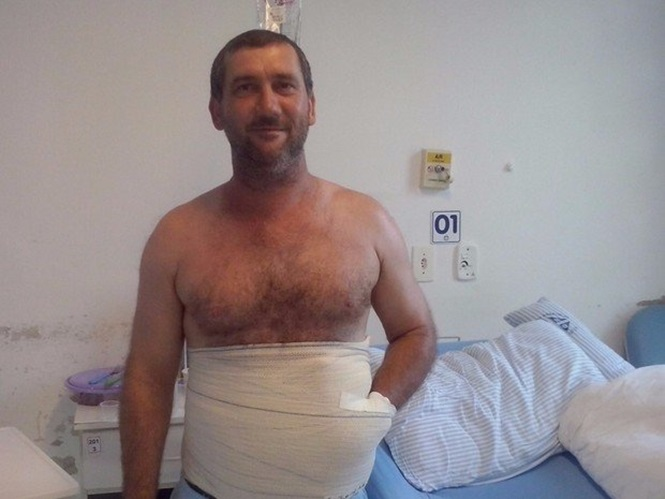 Paciente tem mão colocada no abdômen para salvar membro em Santa Catarina