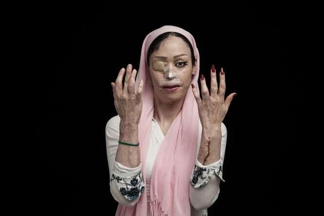 """Imagens de sobreviventes de ataques a ácido revelando o verdadeiro """"rosto da coragem"""""""