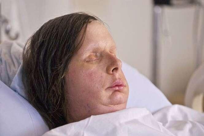 Paciente que passou por transplante facial é internada depois de corpo rejeitar novo tecido.
