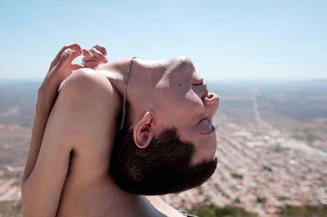 Brasileiro que nasceu com a cabeça para trás lança livro motivacional