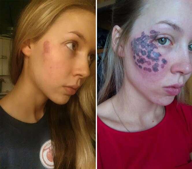 Blogueira fica com enormes queimaduras no rosto após tratamento a laser