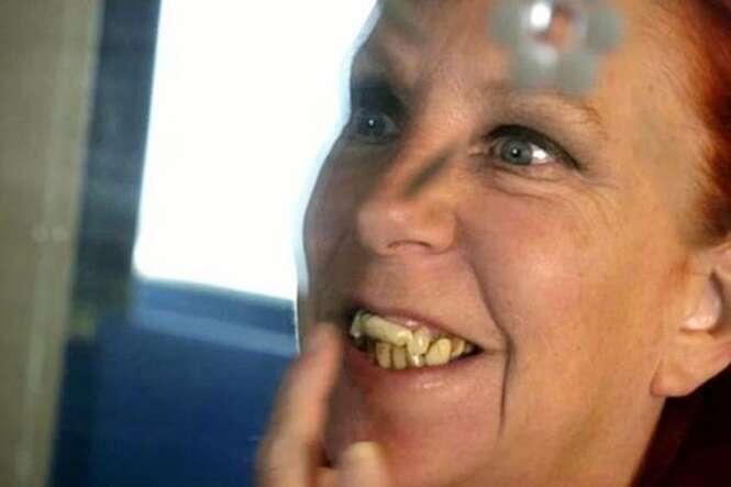 Mulher usa goma de mascar como falsos dentes
