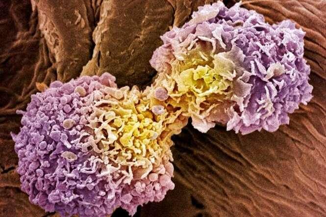 Duas atitudes simples para afastar 13 tipos de cânceres